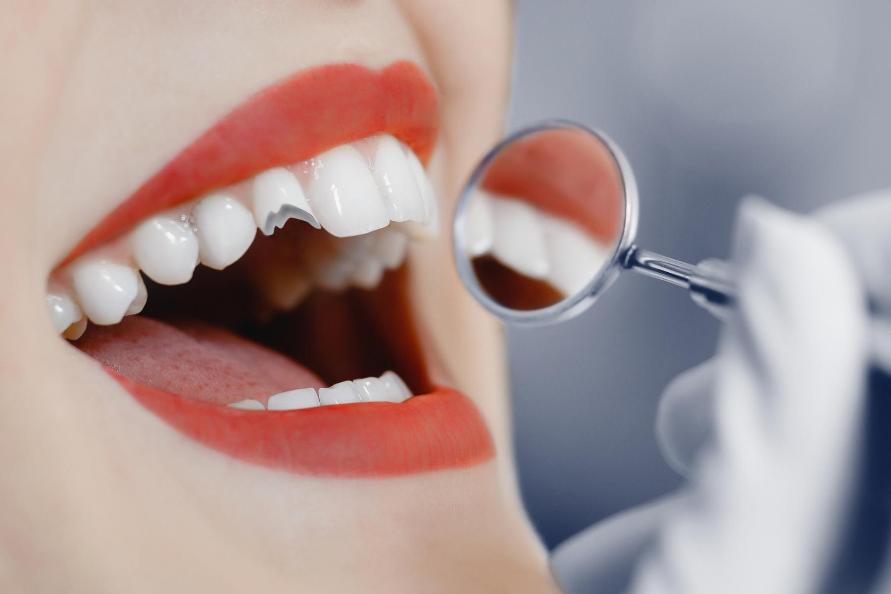 Ways to fix a broken tooth